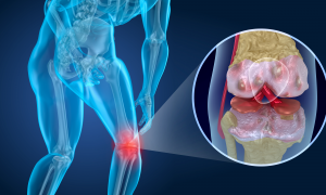 Knee pain arthritis, man suffering from knee pain triggered by arthritis or other degenerative diseases.
